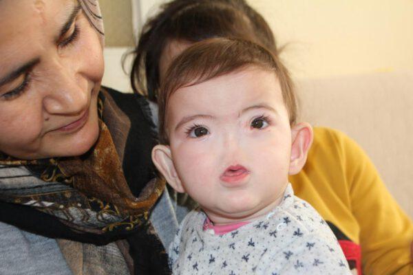 Burnu olmadan doğdu: Dünyada 13 kişide var, 4'ü Türkiye'de